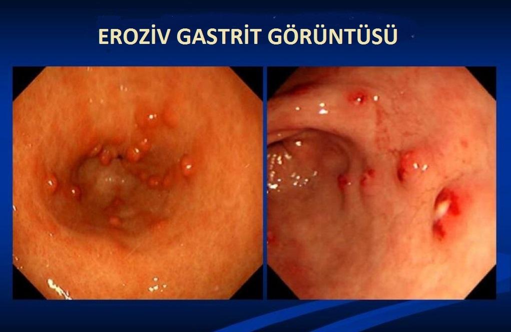 Eroziv Gastrit Belirtileri
