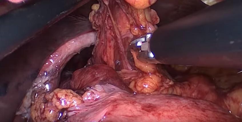 laparoskopik mide fıtığı ameliyatı