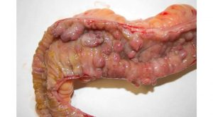 Crohn hastaları kaç yıl yaşar