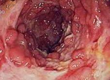 Crohn hastalığında beslenme nasıl olmalı
